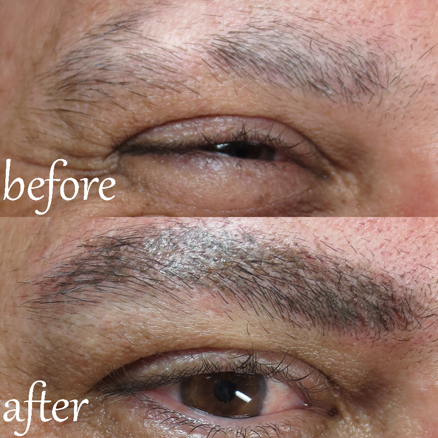 Alopecia Client Male Permanent Eyebrows Best Permanent Makeup In